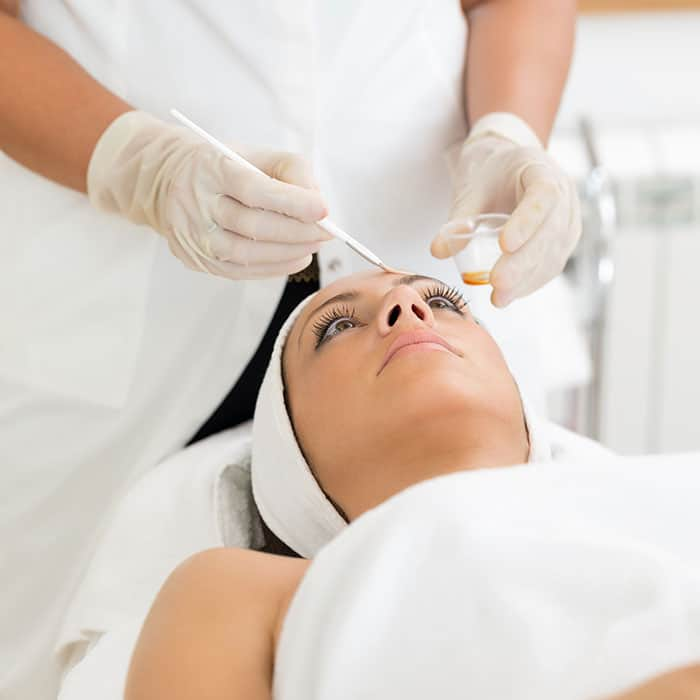 chemical peel banstead