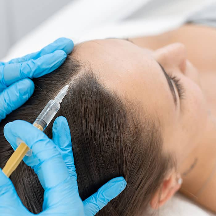 mesotherapy banstead